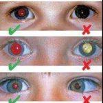 Krebsdiagnose mit Blitzlicht durchführbar