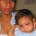 Chagas-Krankheit bricht in Guairá aus