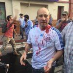 UNO: Die politischen Führer haben zur Gewalt aufgerufen