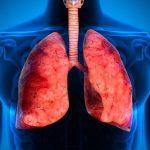 Der Kampf gegen die Tuberkulose in Paraguay