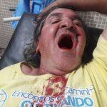 Mordanschlag von mutmaßlichen Viehdieben auf Vorarbeiter einer Estancia im Chaco