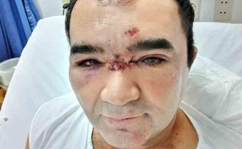 Chaco: Polizeiliche Gewalt ausgeübt?