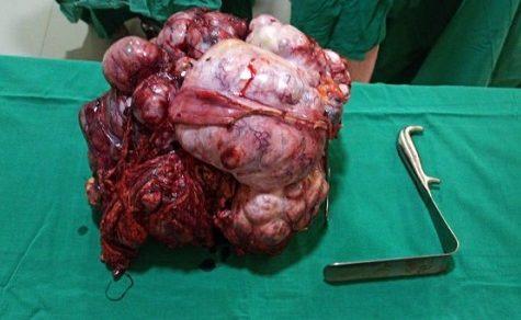 15 Kilogramm schwerer Tumor entfernt