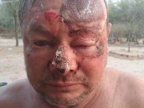 Chaco: Menschenunwürdiges Verhalten an den Tag gelegt